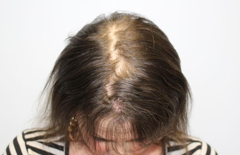 rụng tóc ở nữ
