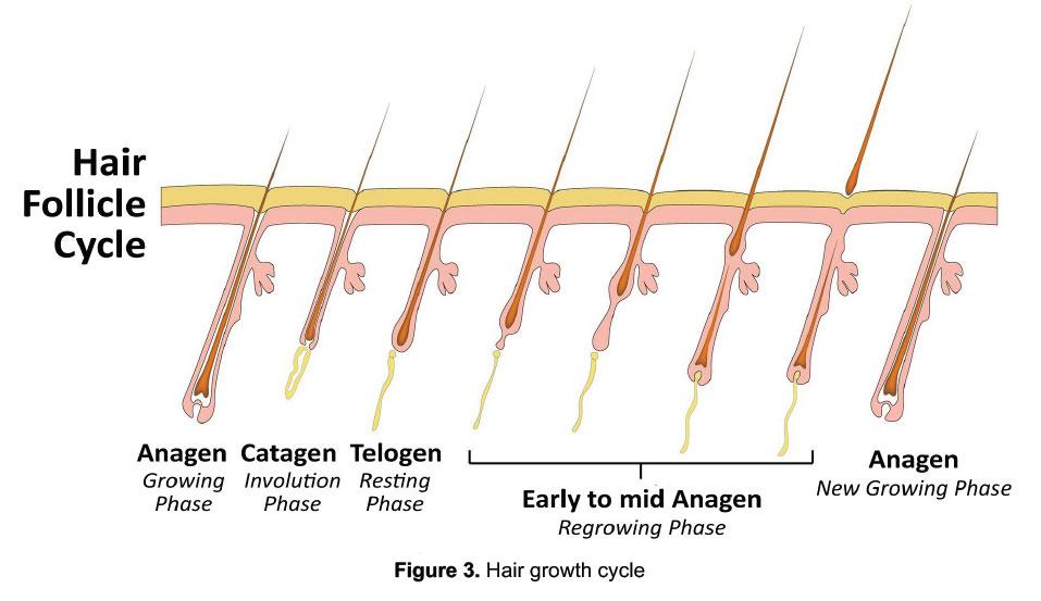 Nang tóc hình thành